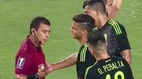 Schiuma contro il giocatore, all'arbitro parte la spruzzata