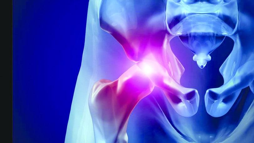 La via di accesso anteriore per l'artroprotesi di anca
