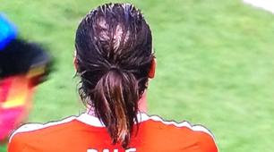 Gareth Bale e lo chiffon-riporto: la calvizie avanza....