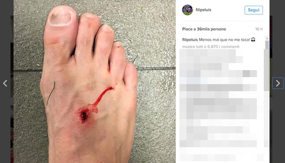 Liga, scintille Filipe Luis-Suarez: il difensore pubblica la foto della ferita