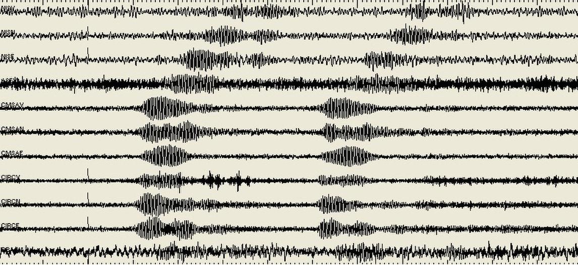 Champions League Napoli,urlo 'The Champions' registrato da sismografi
