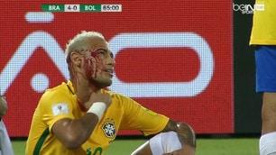Neymar insanguinato, che botta con la Bolivia