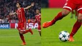 Bayern Monaco, Hummels e il mistero degli scarpini tagliati