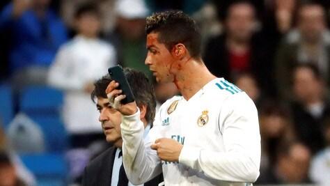 Ronaldo si specchia con il cellulare dopo la ferita alla testa