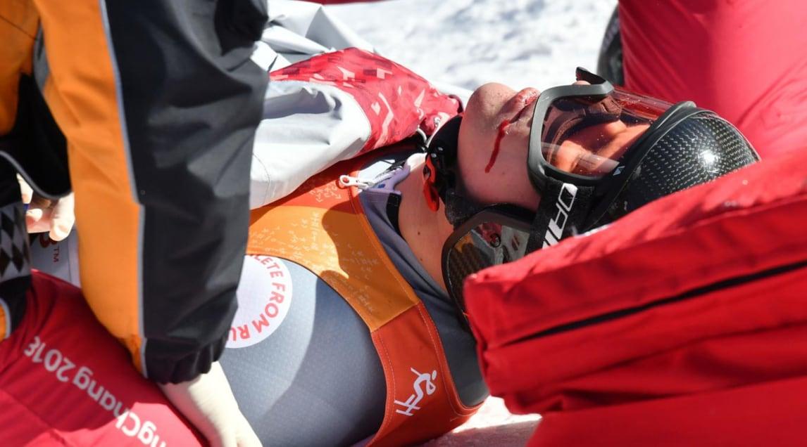 Le immagini del terribile incidente dello sciatore russo durante la gara della combinata