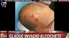 Aggressione shock allo Sporting Lisbona: paura anche per Rui Patricio