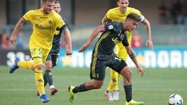 Serie A Chievo, frattura per Hetemaj: salta l'Empoli