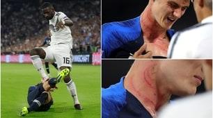 Germania-Francia, i tacchetti di Rüdiger segnano il collo di Pavard