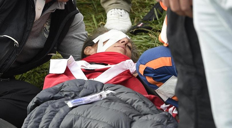 RYDER CUP Spettatrice perde un occhio dopo essere stata colpita da Koepka