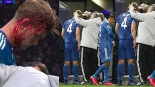 Lione-Juve, De Ligt colpito alla testa: sangue e fasciatura