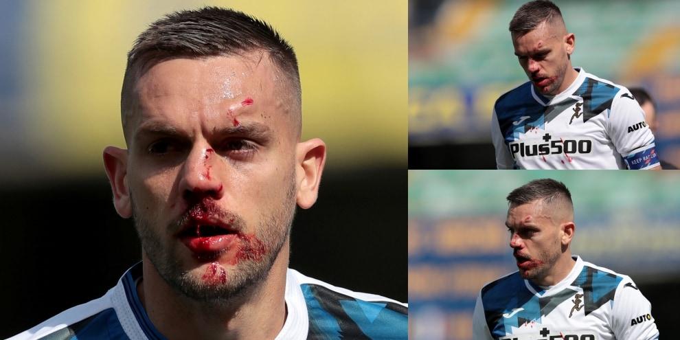 Verona-Atalanta, Toloi una maschera di sangue