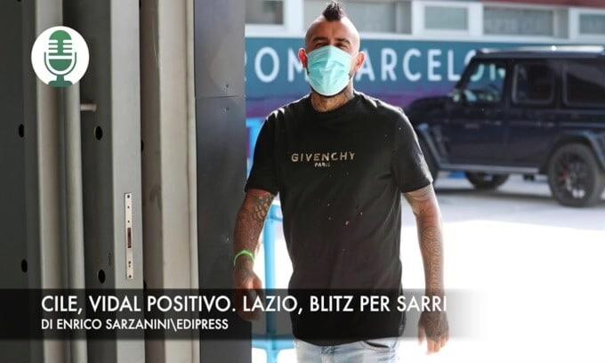 Cile, Vidal positivo. Lazio, blitz per Sarri