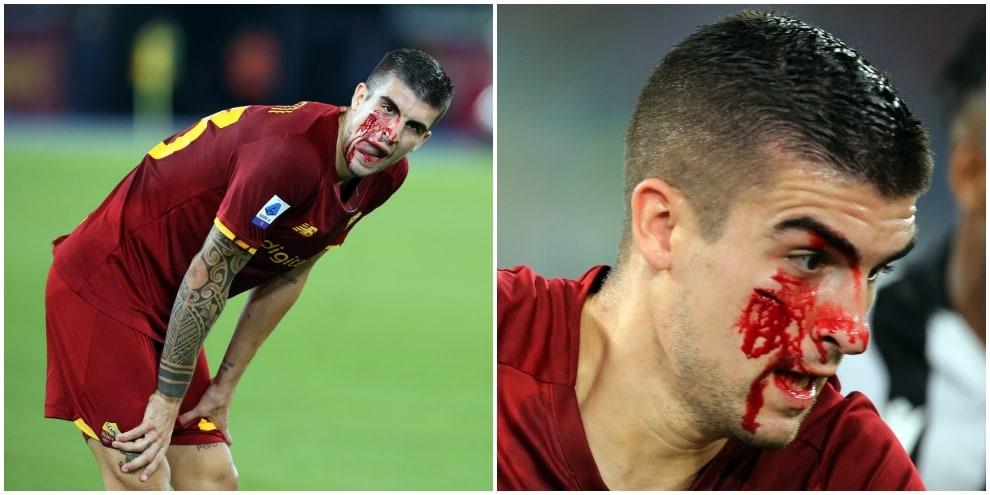 Roma-Udinese, Mancini una maschera di sangue